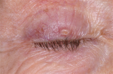 Right upper eyelid basal cell carcinoma