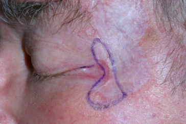 Recurrent skin cancer outlined