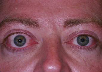 Bilateral Proptosis (Bulging Eyes)