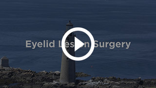 Eyelid & Facial Lesion Removal and Biopsy